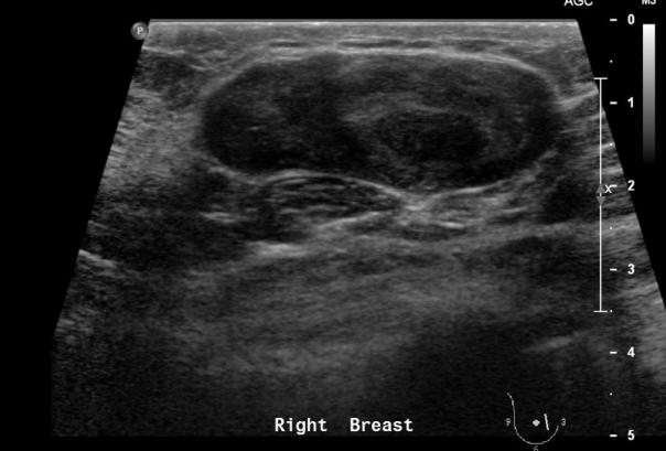 Ultrasound image of fibroadenoma
